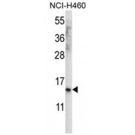AP54467PU-N
