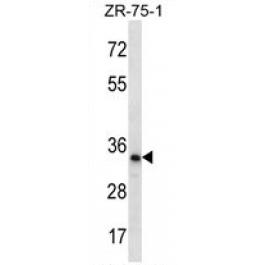 AP54265PU-N