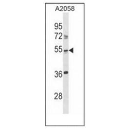 AP52149PU-N