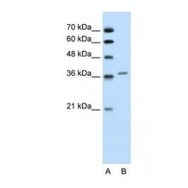NBP1-56508