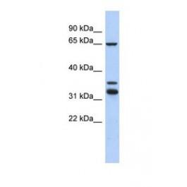 NBP1-56954