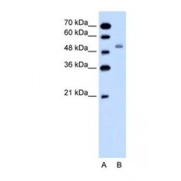 NBP1-57622