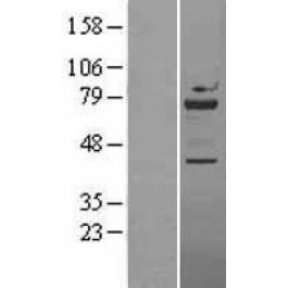 NBL1-17726