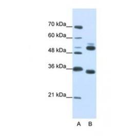 NBP1-54844