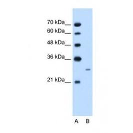 NBP1-57996