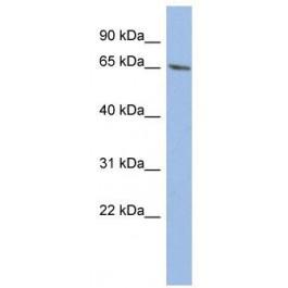 TA335174