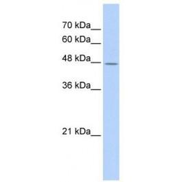 TA335457