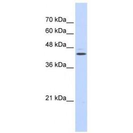TA344563