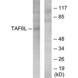 TA315084