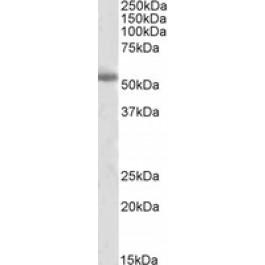TA305827
