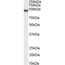 TA303243