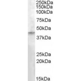 TA302589
