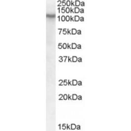 TA303353