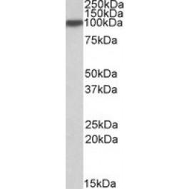 TA305638