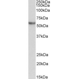 TA326723