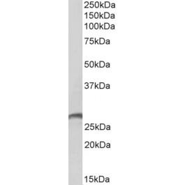 TA326729