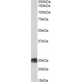 TA329080