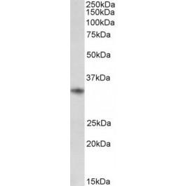 TA334192