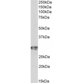 TA348948