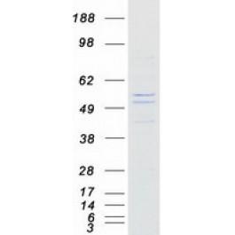 TP303654