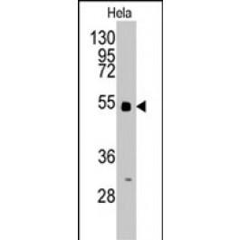 PAB2963