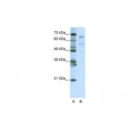 ARP38801_T100
