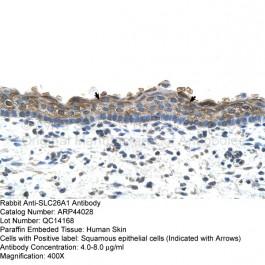 ARP44028_P050