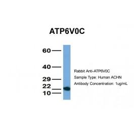 ARP45161_P050