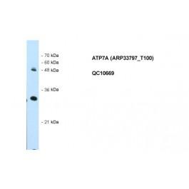 ARP33797_T100
