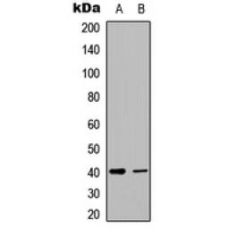 CPA4533-100ul