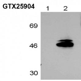 GTX25904