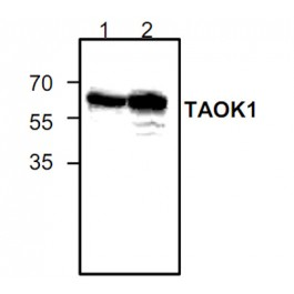 GTX59887