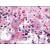 Brain, cerebellum: Formalin-Fixed Paraffin-Embedded (FFPE)
