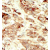 Formalin-fixed and paraffin-embedded human cancer tissue 8breast carcinoma) reacted with the primary antibody, which was peroxidase-conjugated to the secondary antibody, followed by DAB staining. This data demonstrates the use of this antibody for immunohistochemistry; clinical relevance has not been evaluated.