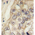 Formalin-fixed and paraffin-embedded human hepatocarcinoma tissue reacted with CDH6 antibody (C-term) (AP11373PU-N), which was peroxidase-conjugated to the secondary antibody, followed by DAB staining. This data demonstrates the use of this antibody for immunohistochemistry; clinical relevance has not been evaluated.