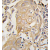 Formalin-fixed and paraffin-embedded human lung carcinoma tissue reacted with CD4 antibody (N-term) (AP11516PU-N), which was peroxidase-conjugated to the secondary antibody, followed by DAB staining. This data demonstrates the use of this antibody for immunohistochemistry; clinical relevance has not been evaluated.