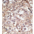 Formalin-fixed and paraffin-embedded human hepatocarcinoma reacted with the primary antibody, which was peroxidase-conjugated to the secondary antibody, followed by AEC staining. This data demonstrates the use of this antibody for immunohistochemistry; clinical relevance has not been evaluated.