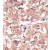Figure 2. Formalin-fixed and paraffin-embedded human hepatocarcinoma reacted with the primary antibody, which was peroxidase-conjugated to the secondary antibody, followed by AEC staining. This data demonstrates the use of this antibody for immunohistochemistry; clinical relevance has not been evaluated.