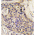 Formalin-fixed and paraffin-embedded human hepatocarcinoma tissue reacted with HGF antibody (C-term) (AP11675PU-N), which was peroxidase-conjugated to the secondary antibody, followed by DAB staining. This data demonstrates the use of this antibody for immunohistochemistry; clinical relevance has not been evaluated.