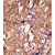 Formalin-fixed and paraffin-embedded human breast carcinoma reacted with the primary antibody, which was peroxidase-conjugated to the secondary antibody, followed by DAB staining. This data demonstrates the use of this antibody for immunohistochemistry; clinical relevance has not been evaluated.
