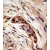 Formalin-fixed and paraffin-embedded human breast carcinoma reacted with the primary antibody, which was peroxidase-conjugated to the secondary antibody, followed by AEC staining. This data demonstrates the use of this antibody for immunohistochemistry; clinical relevance has not been evaluated.