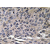 Immunohistochemistry analyzes of MIP-1α antibody (Cat.-No.: AP20656PU-N) in paraffin-embedded human lung carcinoma tissue.