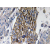 Immunohistochemistry analysis of Connexin-32 antibody (Cat.-No AP20645PU-N) in paraffin-embedded human lung carcinoma tissue.