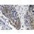 Immunohistochemistry analyzes of IgA antibody (Cat.-No.: AP20644PU-N) in paraffin-embedded human lung carcinoma tissue.