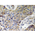 Immunohistochemistry analyzes of ATP5J2 antibody (Cat.-No.: AP20619PU-N) in paraffin-embedded human lung carcinoma tissue.