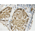 Immunohistochemistry analyzes of FosB antibody (AP20229PU-N) in paraffin-embedded human prostate carcinoma tissue.
