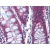 Immunohistochemistry Image: Human Colon: Formalin-Fixed, Paraffin-Embedded (FFPE)