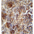 ZNF30 antibody (N-term) (AP54687PU-N) immunohistochemistry analysis in formalin fixed and paraffin embedded human lung carcinoma followed by peroxidase conjugation of the secondary antibody and DAB staining. This data demonstrates the use of the ZNF30 antibody (N-term) for immunohistochemistry. Clinical relevance has not been evaluated.