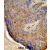 Formalin-fixed and paraffin-embedded human skin tissue reacted with TCHP Antibody (Center), which was peroxidase-conjugated to the secondary antibody, followed by DAB staining. This data demonstrates the use of this antibody for immunohistochemistry; clinical relevance has not been evaluated.