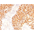Formalin-paraffin rhabdomyosarcoma stained with MyoD1 Antibody Cat.-No AM50144PU (Clone SPM427).